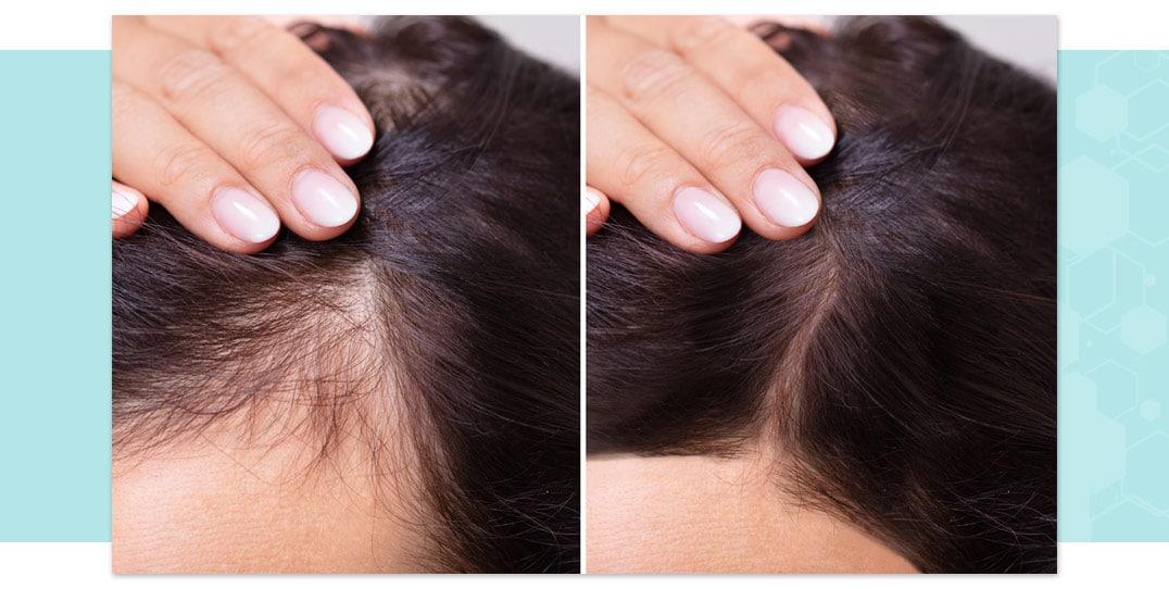 autotrapianto capelli lombardia | tricomedical